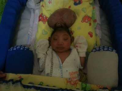 Bayi pasangan suami istri (pasutri), Darma dan Sumarlin, terlahir menderita kelainan sebagian otak berada di luar kepala (Encephalocele).