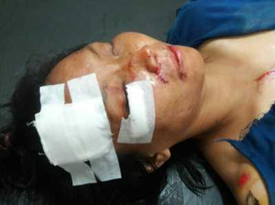 Inilah Wanita tanpa identitas yang ditemukan warga di kilometer 10 Kota Tanjungpinang, Sabtu (18/2) pagi.